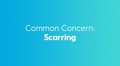 Common-Concerns Scarring
