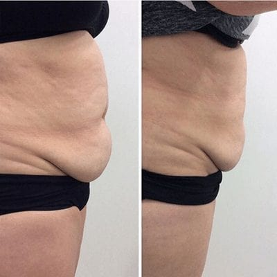 Cryodefine Fat Freezing Treatment Liposuction Before and After Results