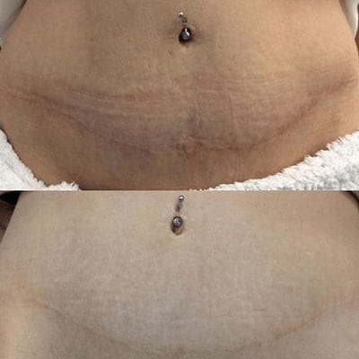 Fractional RF skin tightening treatment before and after results