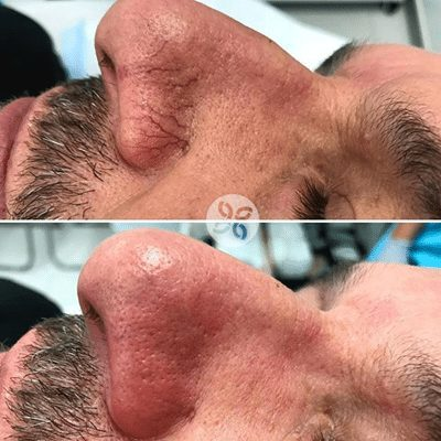 Laser for vein removal on the nose