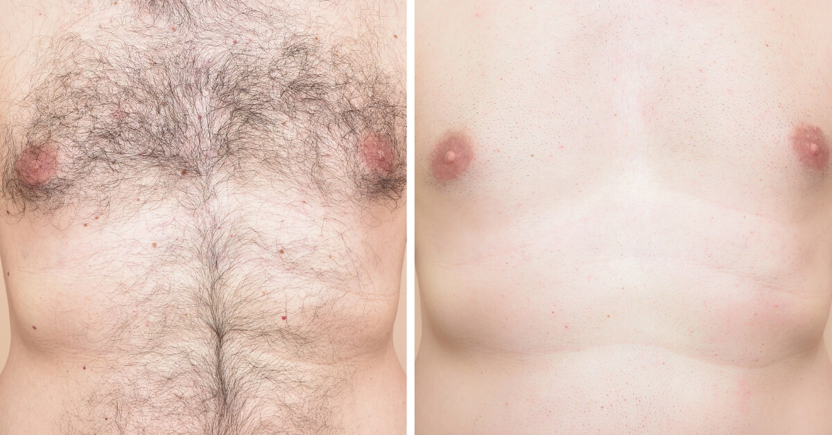male laser hair removal before and after
