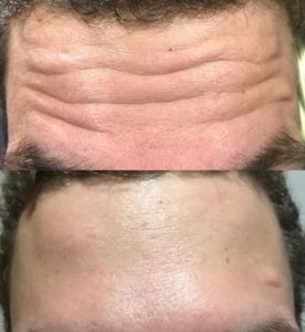 forehead injectables for men