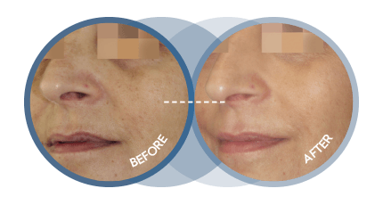 Cosmelan results - Before and After image