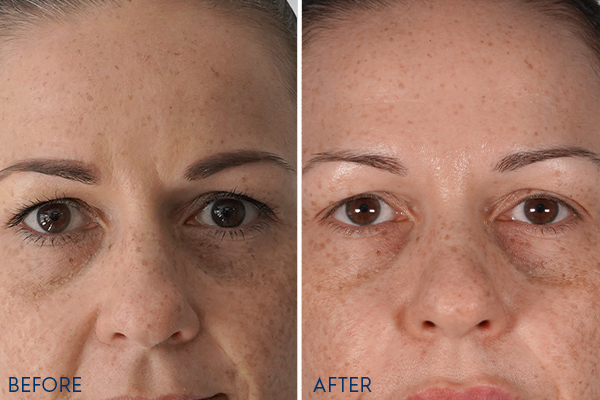 PRP Before and After