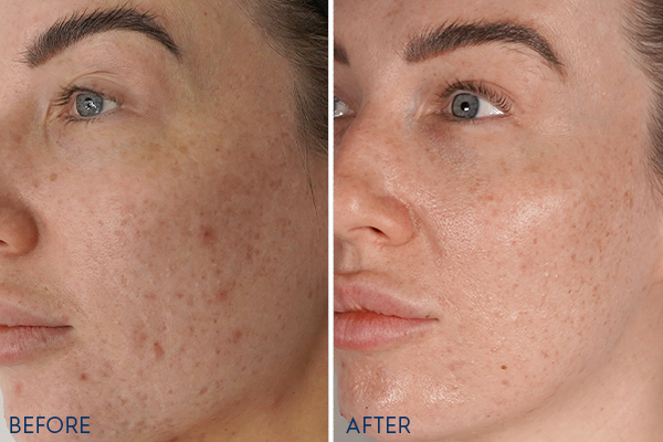 PRP Before and Afters Face