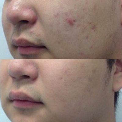 Fractional RF scar removal before and after results