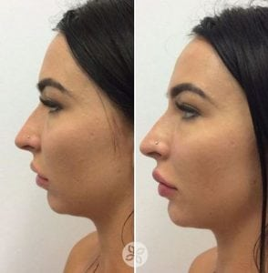 lip filler pac fair